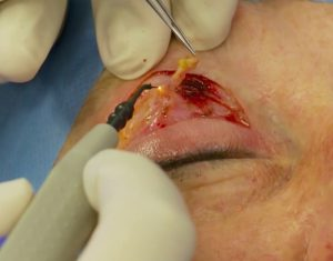 Excision of a small section M. orbicularis oculi