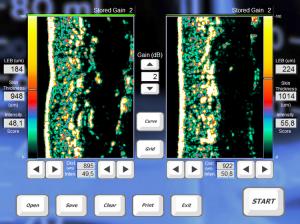 4547_47ac704e2e6a955dde6d1c73982832af_Ultrasound Screen